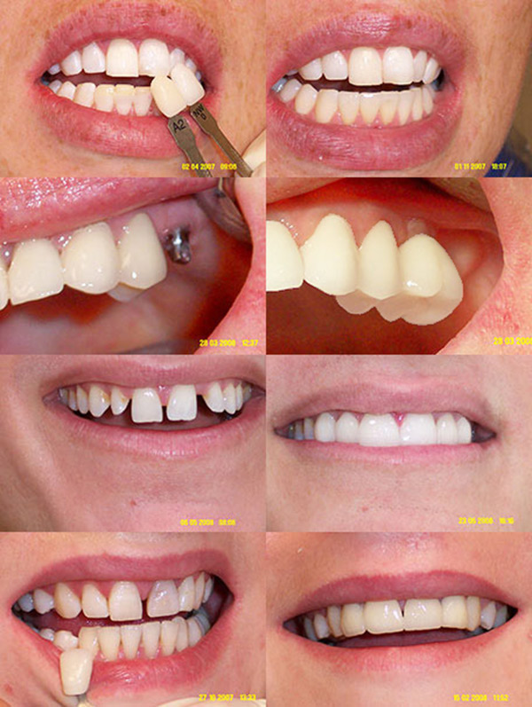 best hove dentist examples